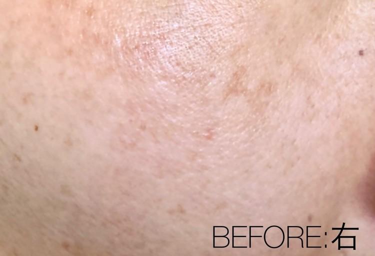 肝斑治療前の右頬の状態