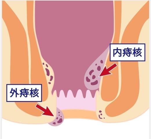 外痔核と内痔核