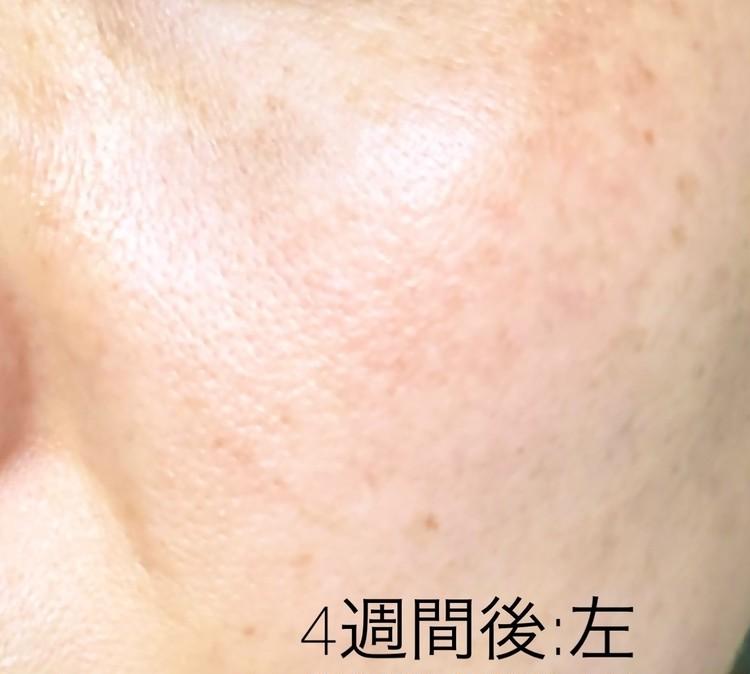 肝斑治療後の左頬のアップ
