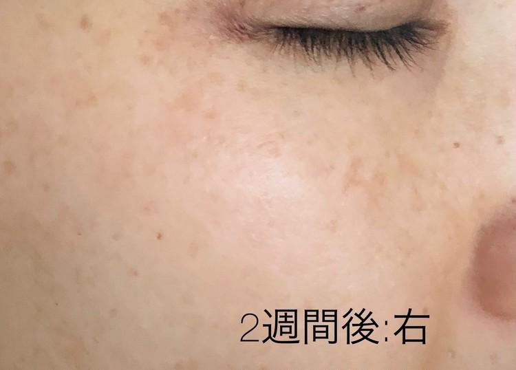 施術から2週間後の右頬の写真