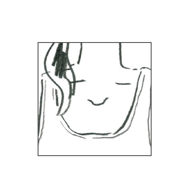 編集Mの治すぞ★「大人ニキビ」撲滅DIARY①【頻出ゾーンおさらい編】_4
