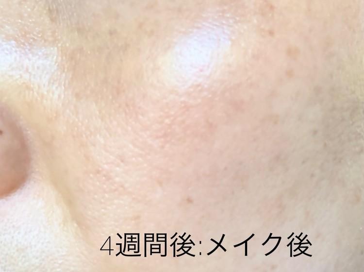 施術から4週間後の左頬にメイクした写真