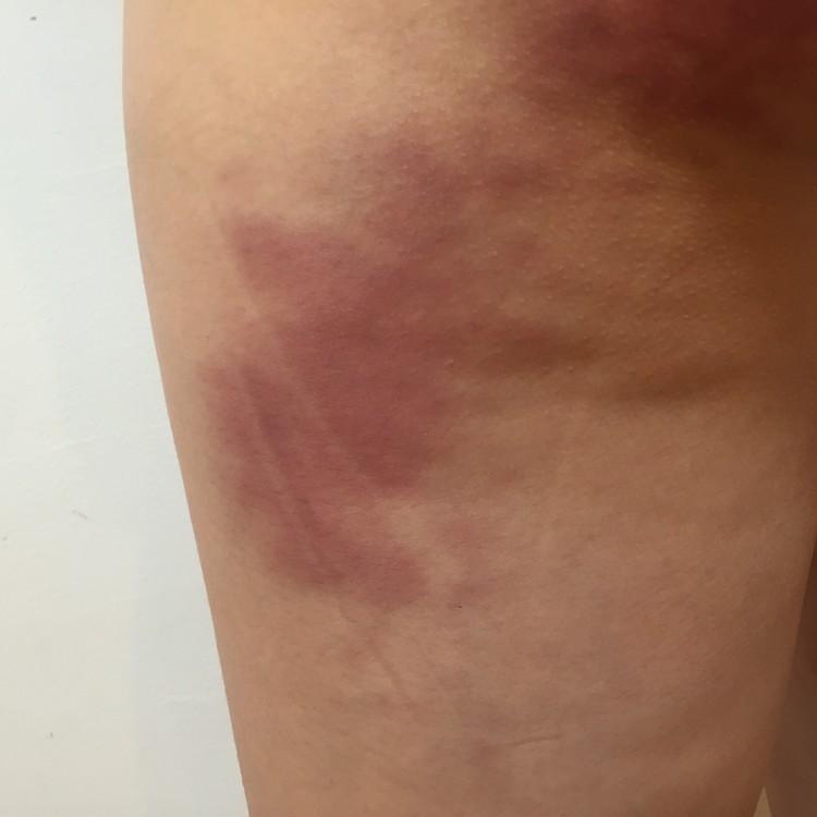 マッサージ あざ 足 足の裏のあざ:原因、家庭療法、および回復