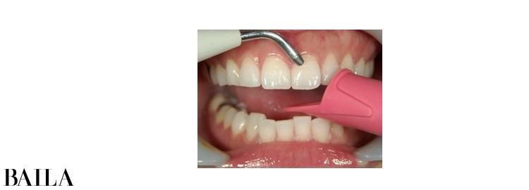 1 アフローなどの器具で歯面を清掃。目に見えない汚れも落とせる