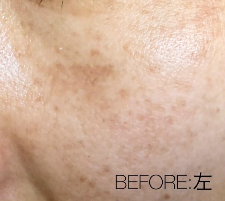 肝斑治療前の左頬のアップ