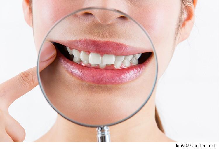 リーズナブルなマウスピース矯正でも歯並びは改善する
