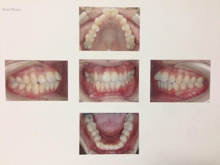 歯列矯正ブログ 歯科病院での口腔写真