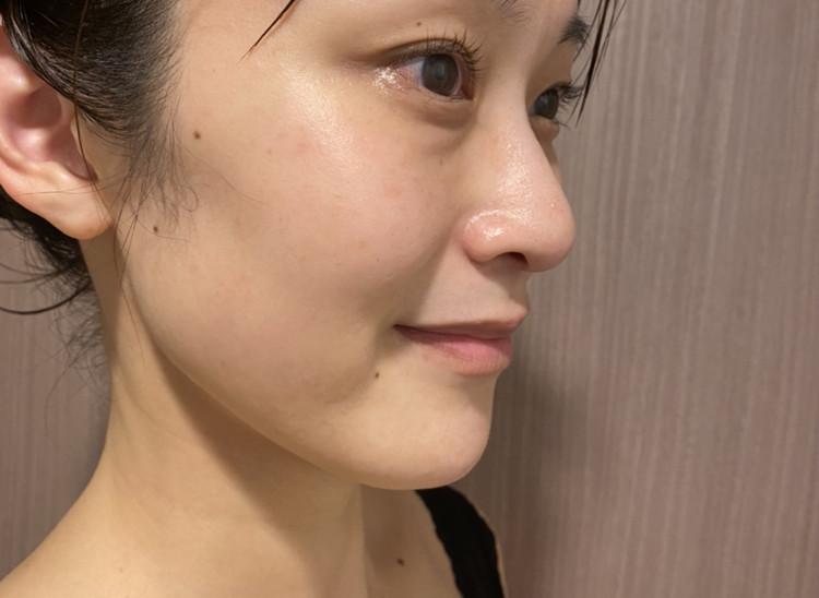 【20日間で肌が変わる!】話題の美容針スキンケア徹底レポ_5_3