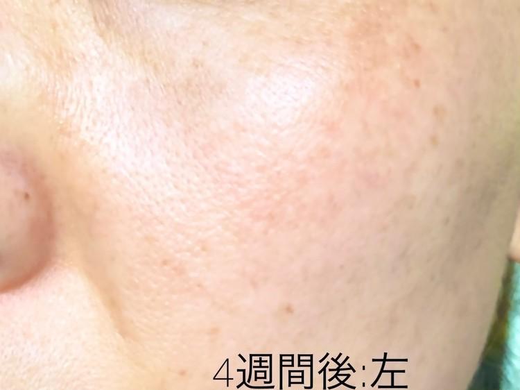 施術から4週間後の左頬の写真