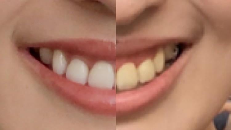 歯列矯正 治療後 ホワイトニング 黄ばみ