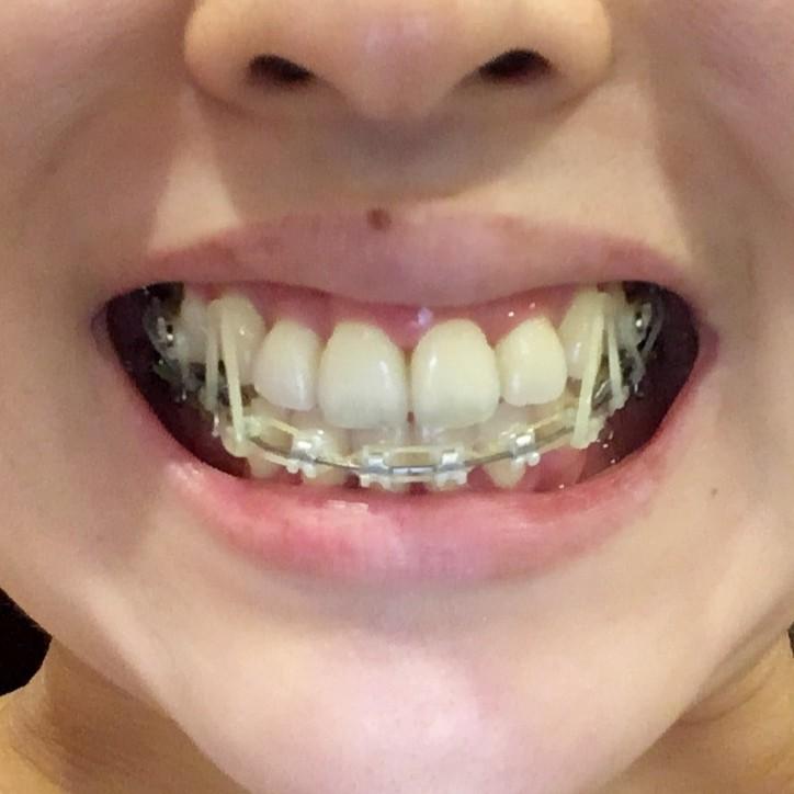 歯列矯正ブログ 治療 ゴム掛け