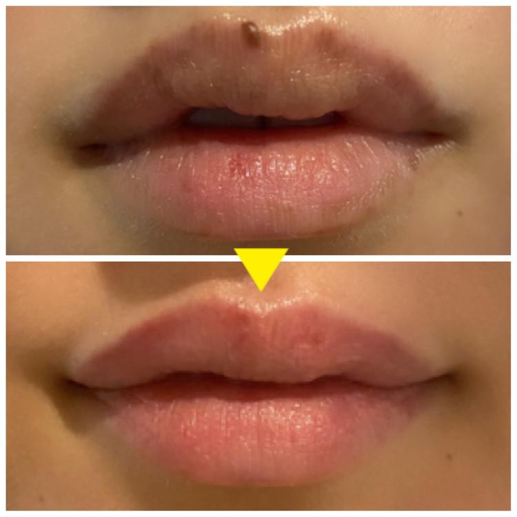唇 シミ before after