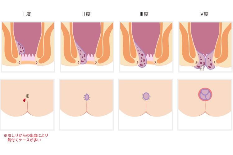 内痔核の分類