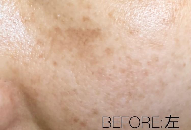 肝斑治療前の左頬の状態