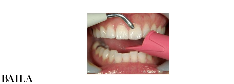 アフローなどの器具で歯面を清掃。目に見えない汚れも落とせる