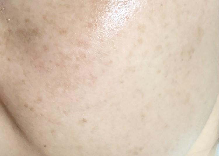 トラネキサム酸を導入した肌