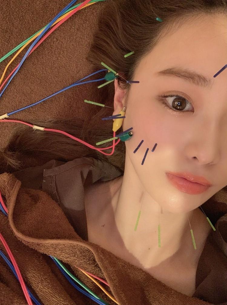 【美容鍼】最強のアンチエイジング♡_2