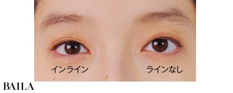 粘膜が見える右目のみインライン