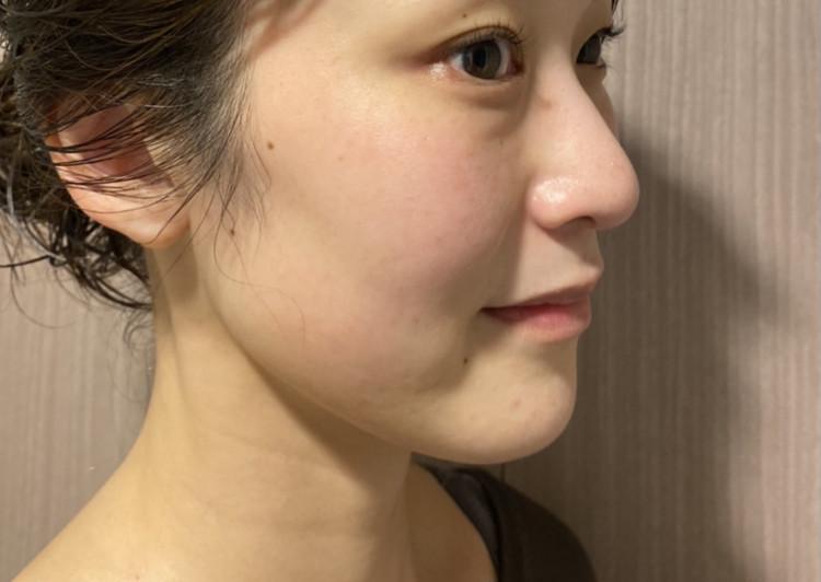 【20日間で肌が変わる!】話題の美容針スキンケア徹底レポ_5_2