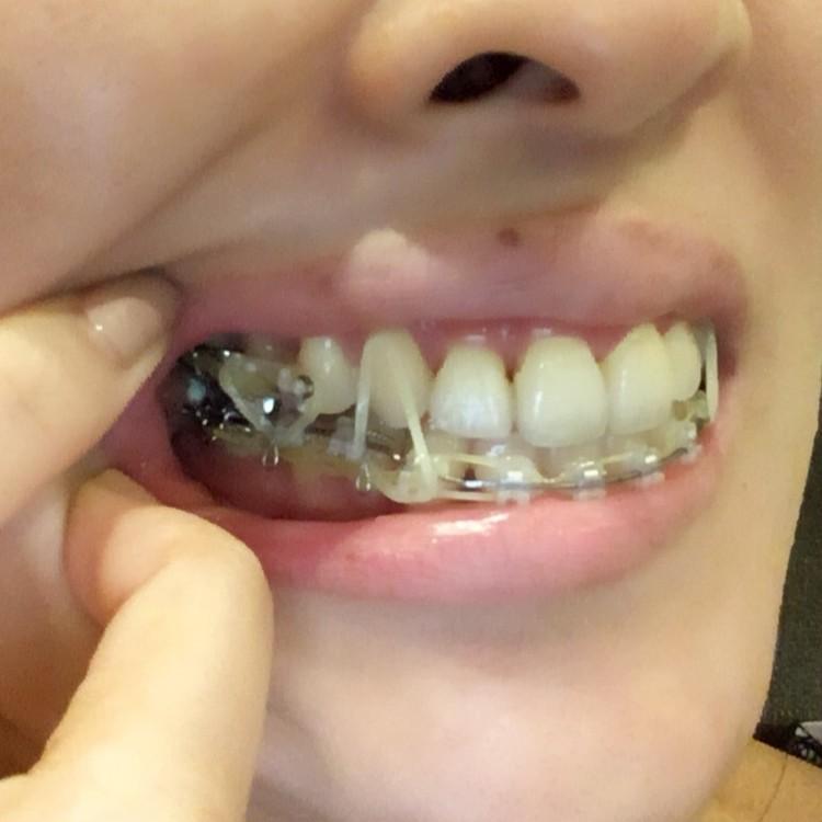 歯列矯正ブログ 治療中 ゴム掛け 奥歯