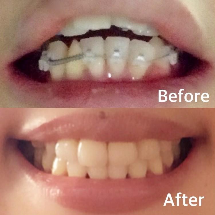 歯列矯正ブログ ビフォワーアフター