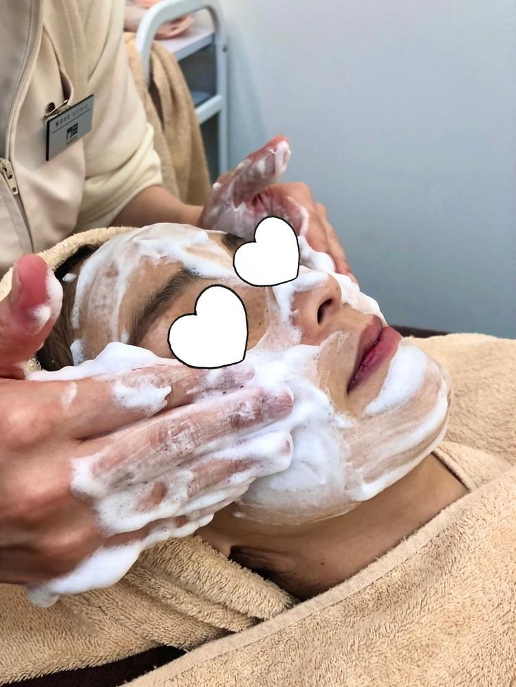 肝斑治療の前の洗顔