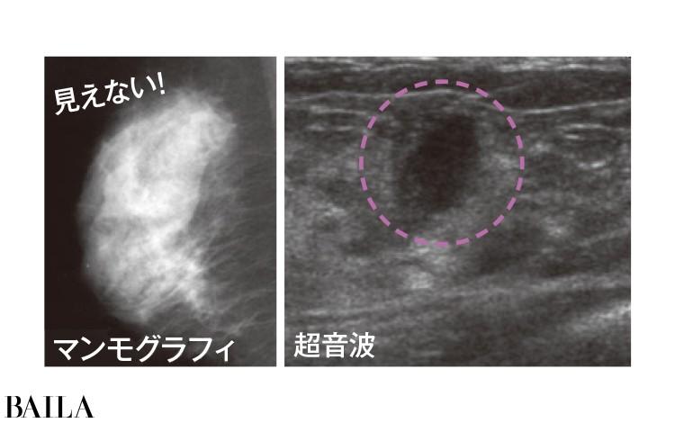 閉経前の高濃度乳房はマンモグラフィではしこりを発見しにくいが超音波では発見が容易