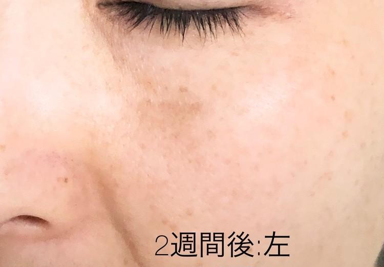 施術から2週間後の左頬の写真