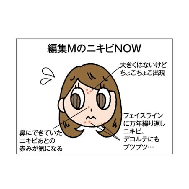 編集Mの治すぞ★「大人ニキビ」撲滅DIARY①【頻出ゾーンおさらい編】_1