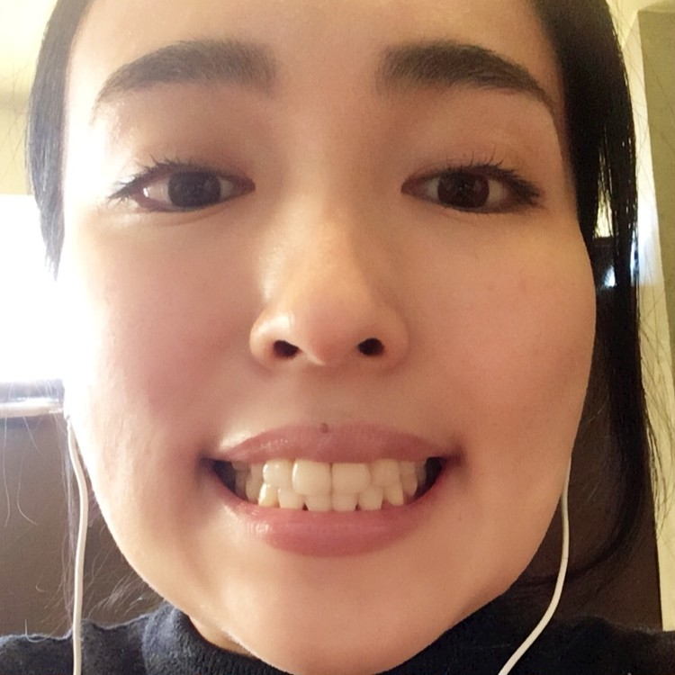 歯列矯正ブログ 治療終了 直後