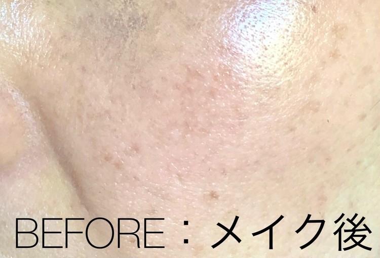 肝斑治療前の左頬、メイク後の状態