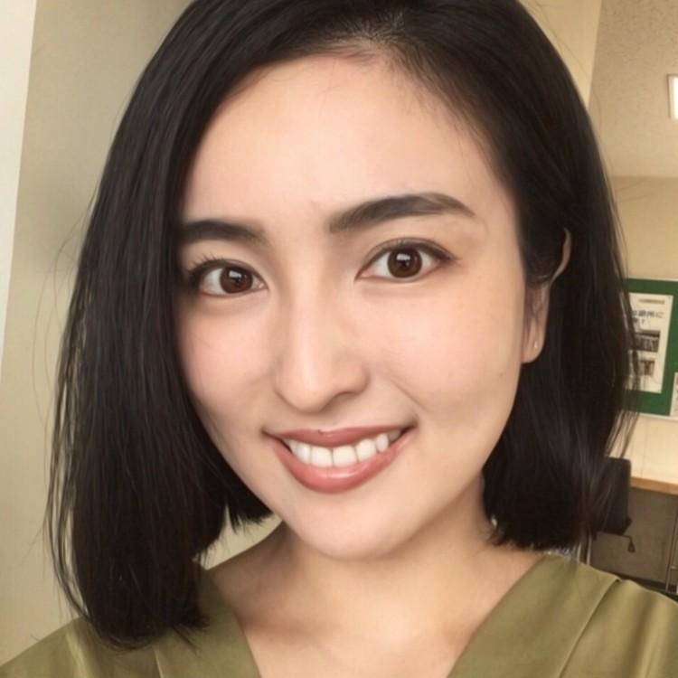 歯列矯正ブログ 治療後 輪郭変化