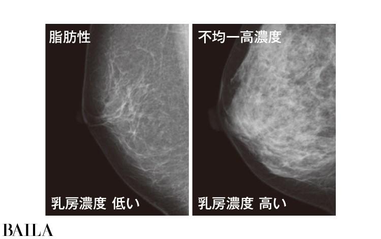 検出できる得意分野が違うので最初は両方を受けて乳房の特徴を把握して