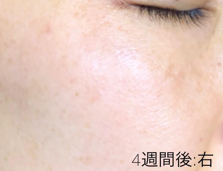 施術から4週間後の右頬の写真