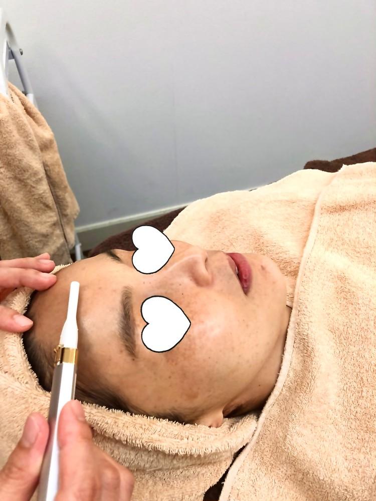 肝斑レーザートーニングのために産毛を剃っている様子