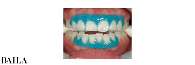 2 歯茎を薬剤で保護し、高濃度のホワイトニング剤を根元までしっかり塗る