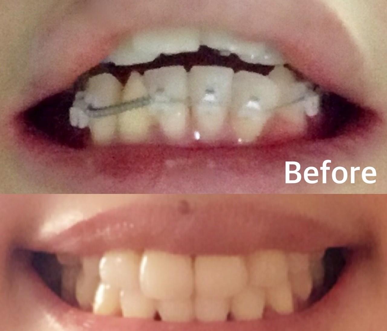 【大人の歯列矯正】アラサーの大事な4年を捧げた歯並び改善、全部見せます!①
