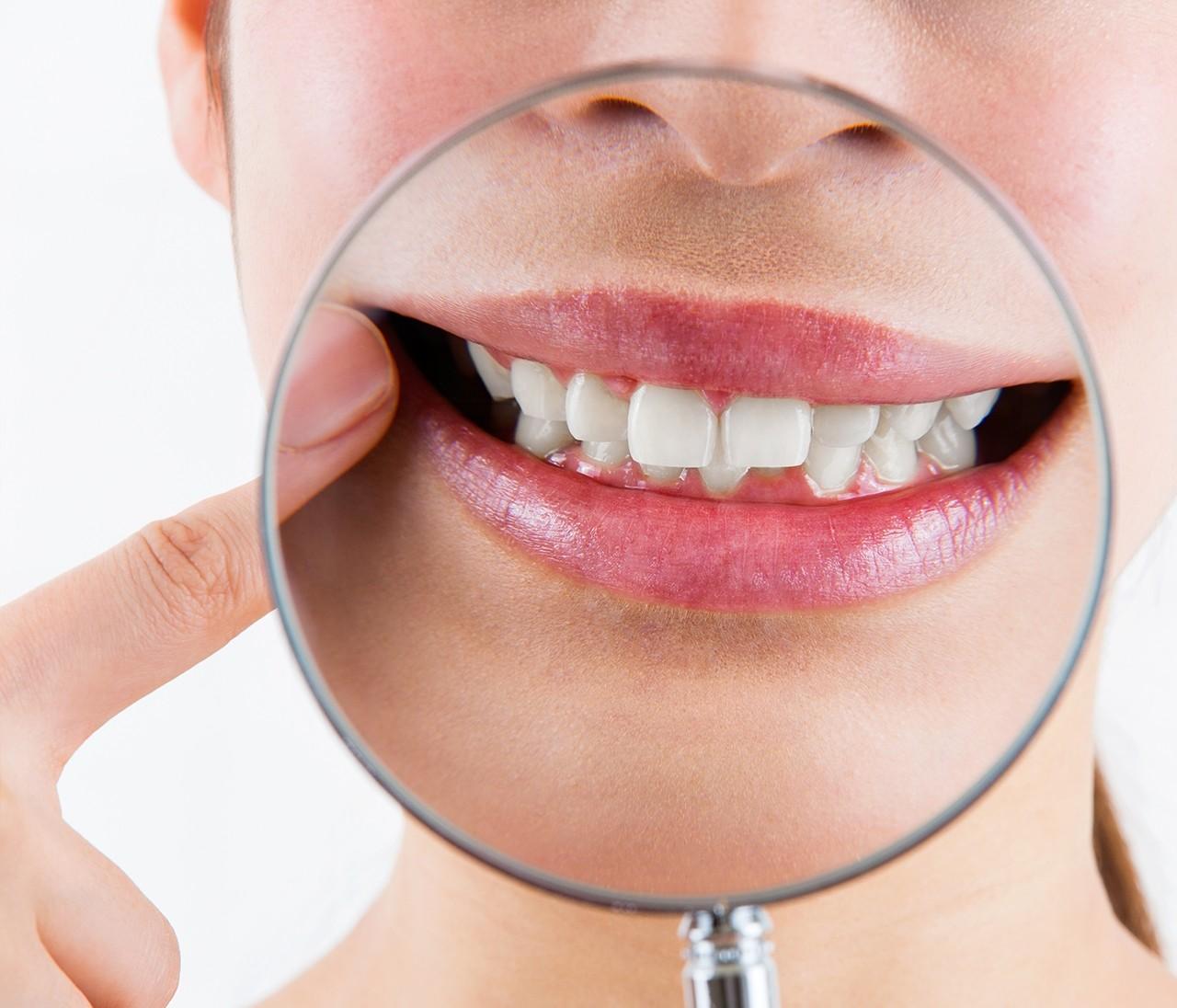 【歯・口内トラブル】矯正すべき?気になる歯並びに関するQ&A