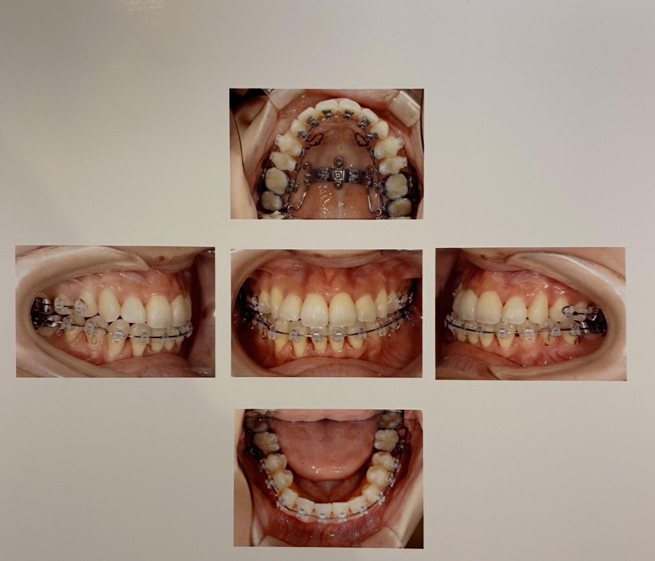 【大人の歯列矯正】アラサーの大事な4年を捧げた歯並び改善の、その後