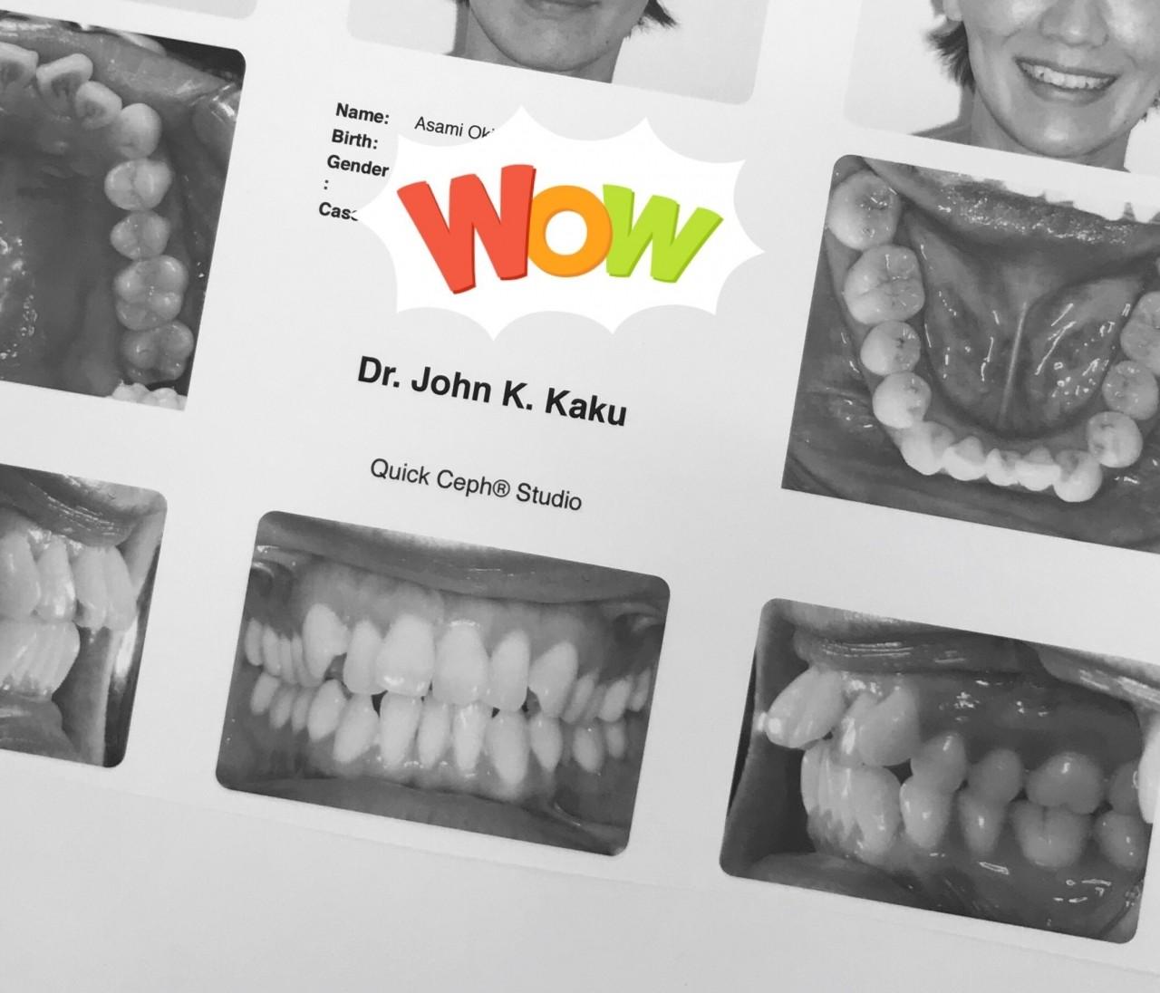 30代40代からでも間に合う【大人女性の歯列矯正】リアル体験記ブログ