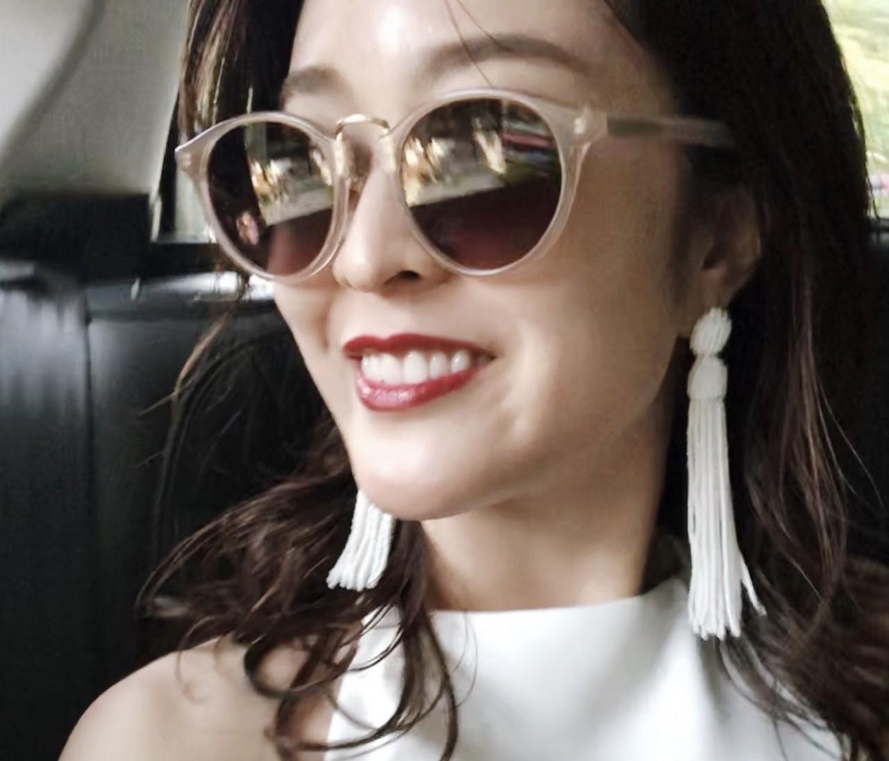 【プレ花嫁美容】歯のホワイトニング結果報告