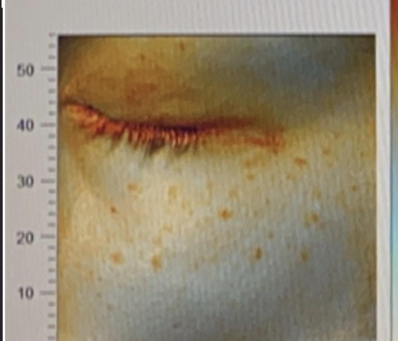 【経過写真】美容皮膚科のレーザーでシミ取り治療!アラサースキンケア